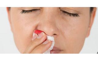 Po privalomo koronaviruso tyrimo – kraujuojanti nosis ir rengimasis naujai kančiai po 10 dienų