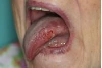 Galima nemokamai pasitikrinti dėl burnos vėžio