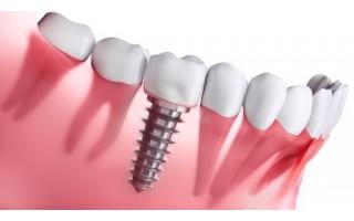 Dantų implantacija ir jos raida