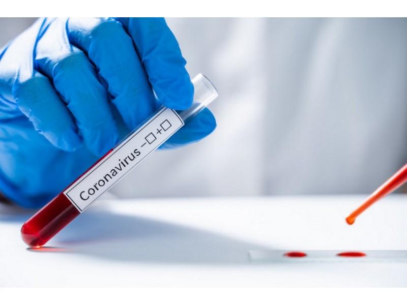 9 COVID-19 infekcijos atvejai yra susiję su židiniu Palangos reabilitacijos ligoninėje