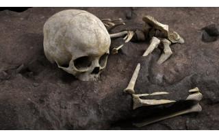 Palangoje, Paliepgirių gatvėje, aptikti žmogaus kaukolė ir kojų kaulai